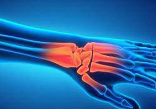 Hand- en polsklachten behandeling - Fysiotherapie